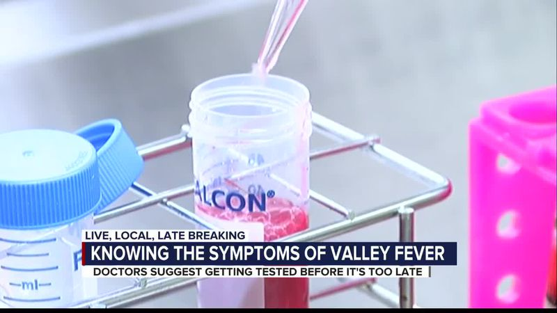 Doctors say COVID-19 is slowing down Valley Fever diagnosis