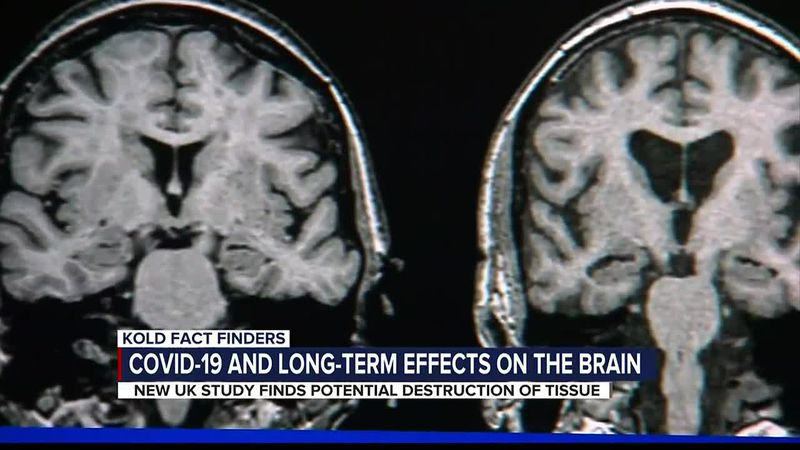 KOLD FACT FINDERS: COVID-19 and long-term effects on the brain
